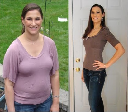 Weight loss after gallbladder removed